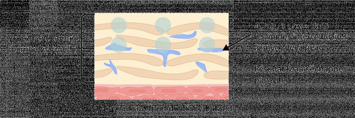 L'importance d'une barrière cutanée protégée | Peau deshydratee